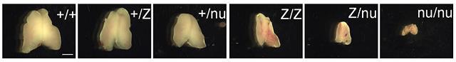 timüs-kapsülü-boyutları-çeşitleri-yaşa-göre-farklılıkları