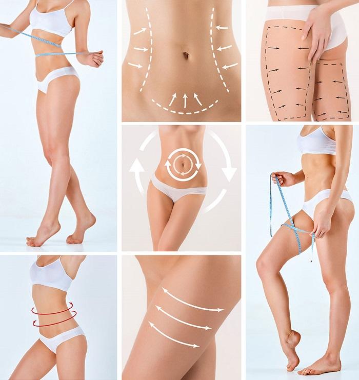 liposuction-uygulamasi-nedir-nasil-yapilir-5