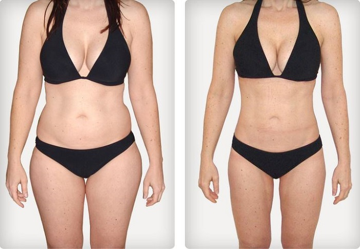 liposuction-uygulamasi-nedir-nasil-yapilir-6
