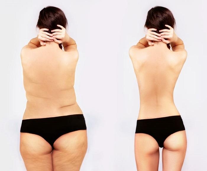liposuction-uygulamasi-nedir-uygulanisi